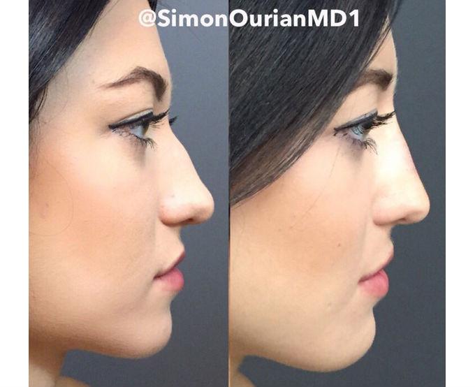Como tener nariz delgada