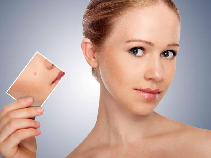 Esto es lo que debes comer para olvidarte del acné
