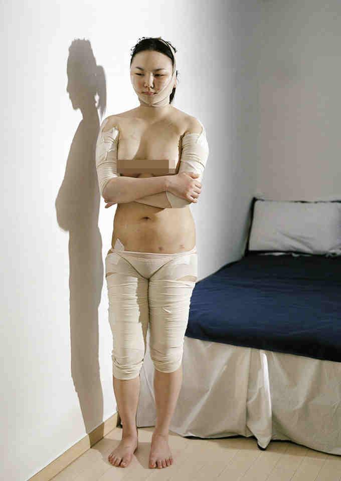 Unas 10 mujeres decidieron colaborar con su proyecto en el país, que en 2010 ocupó el primer lugar mundial en cirugías plásticas de acuerdo a Aesthetic Plastic Surgery.