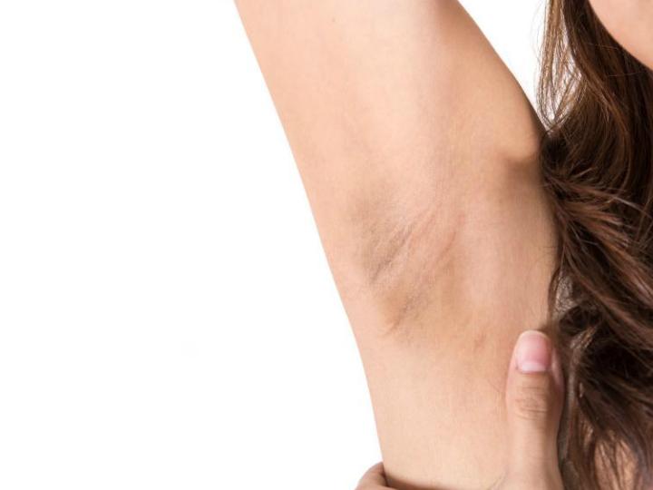 Irritacion en las axilas por depilacion con cera
