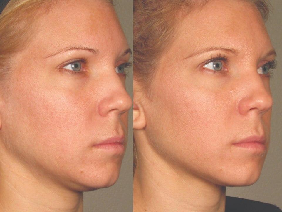 Imagen de rostro antes y después de un lifting facial
