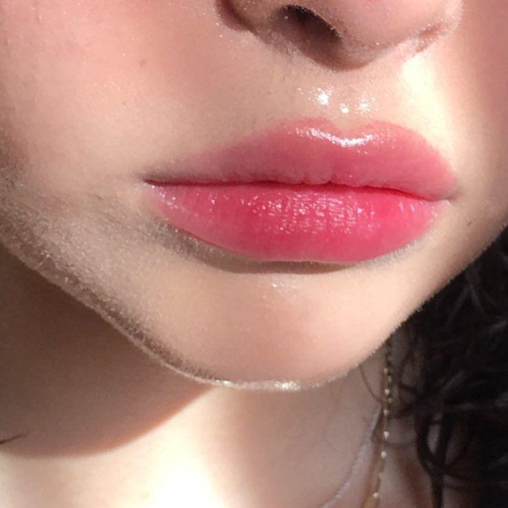 curar-labios-resecos-remedio-casero