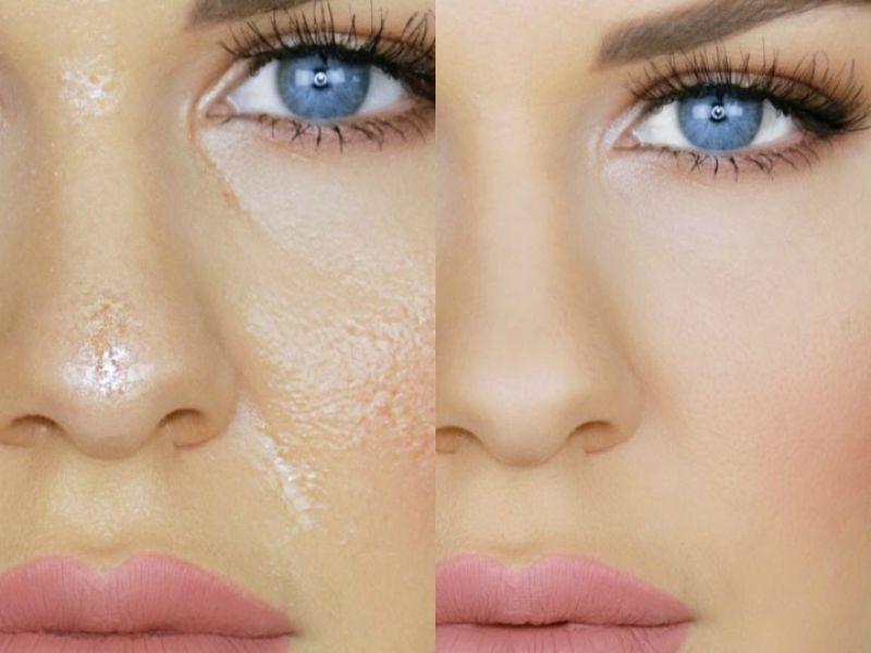 que hacer para que la cara no brille