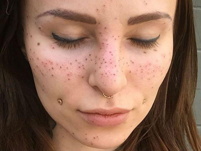 La crema contra las manchas negras en la piel