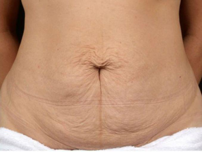 como quitar la flacidez del abdomen despues de un embarazo
