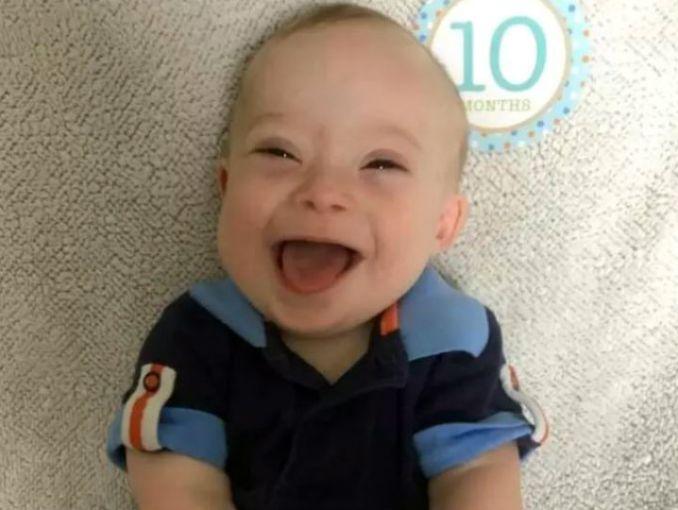 Gerber elige a bebé con Síndrome de Down para su nueva imagen