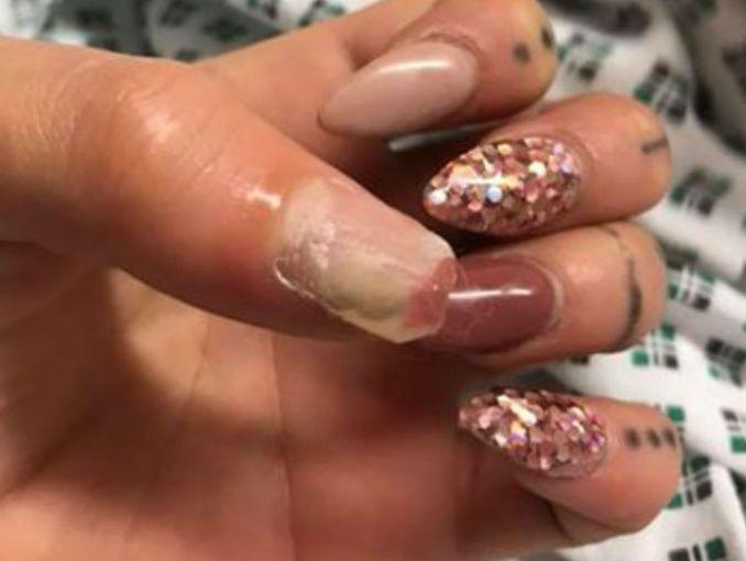Esta mujer casi pierde el dedo pulgar y todo por usar uñas postizas ...